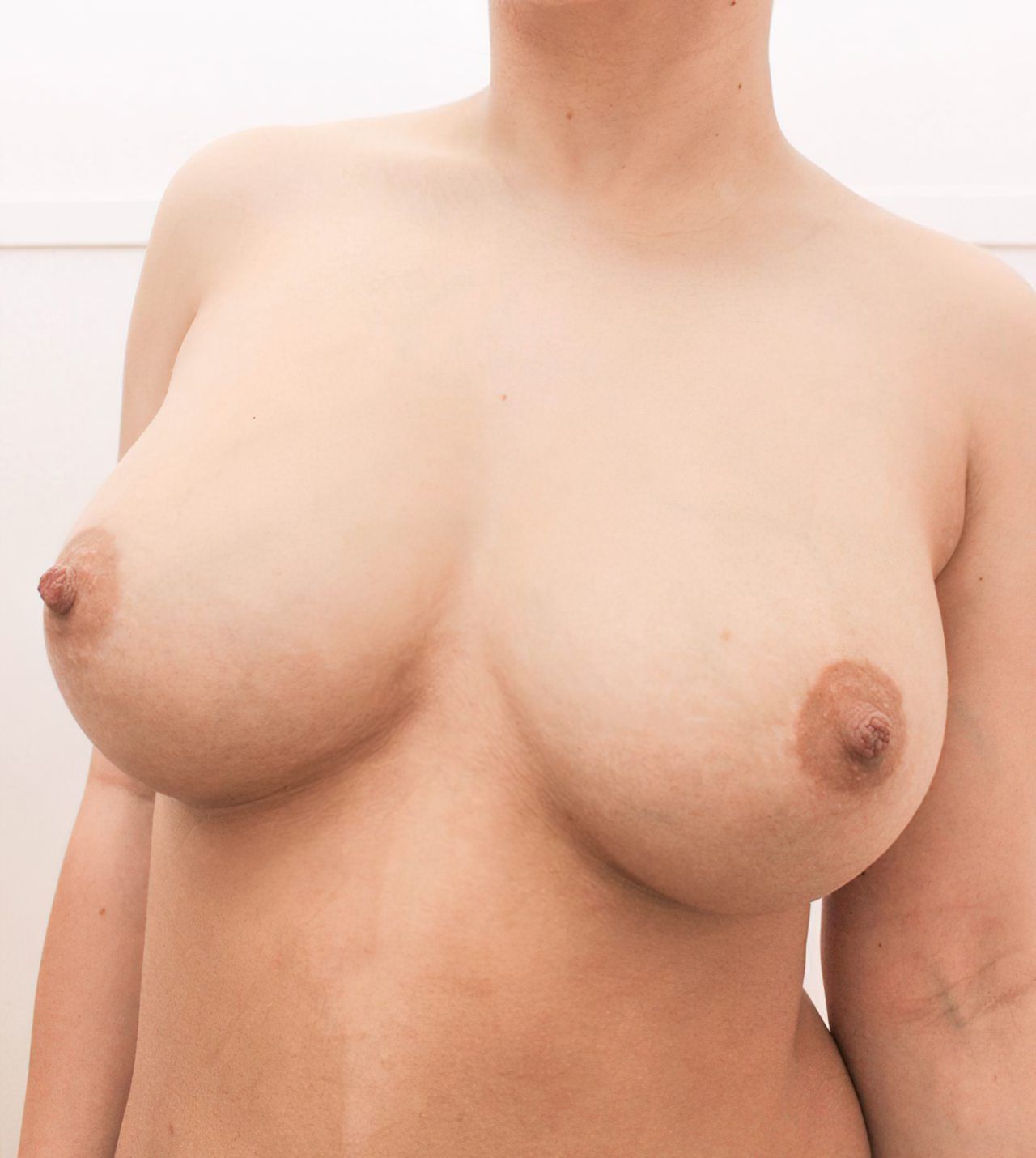 Corpo Pelado (2)