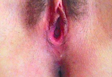 Buceta Depois do Sexo